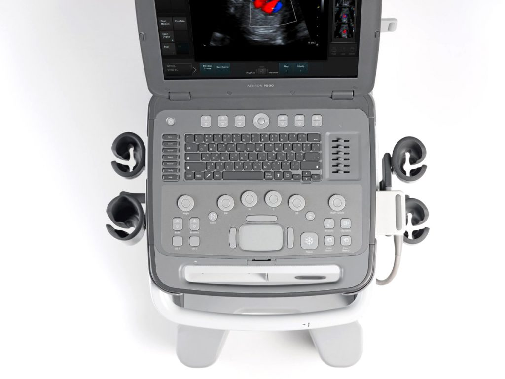 Ecograf portabil Acuson P500 Siemens Healthineers